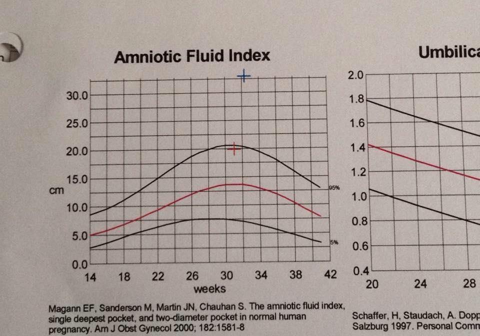 high amniotic fluid, polyhydramnios