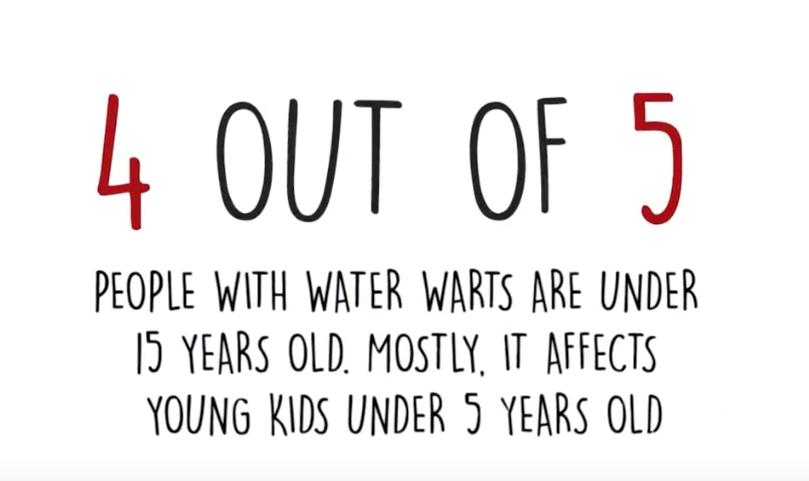water warts