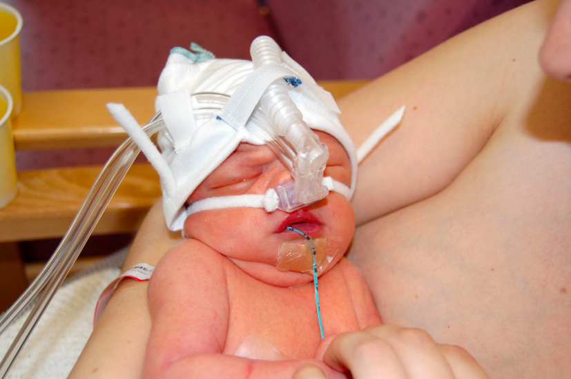 Tips for feeding your baby in special care