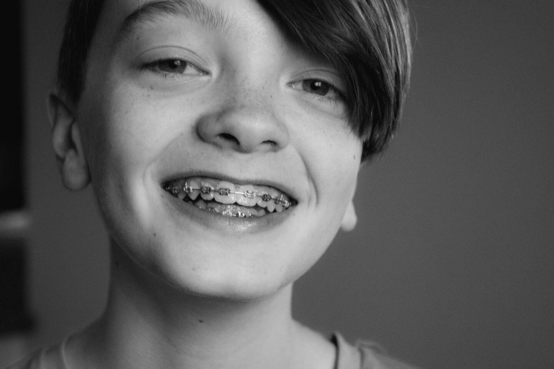 Understanding how braces work